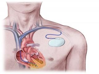 دستگاههای آی سی دی یا دفیبریلاتورهای قلبی کاشتنی ، ICD