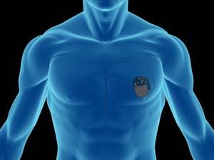 دستگاههای ضربان ساز یا پیس میکرهای قلبی،  Pacemaker